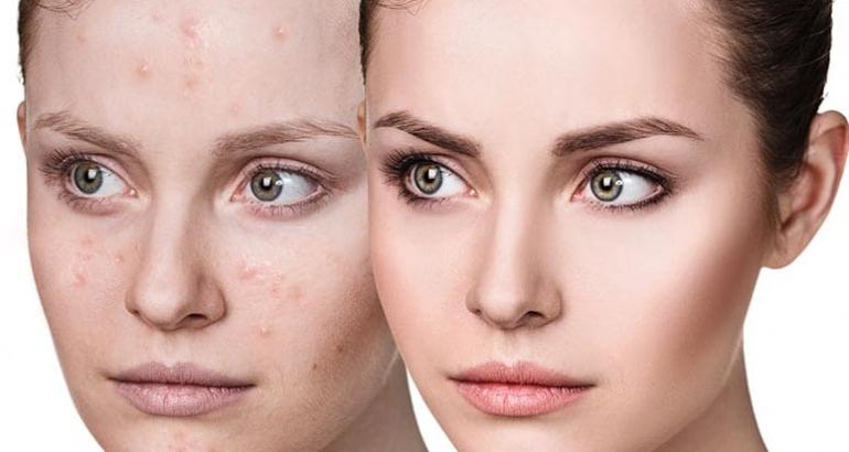 Tratament Laser acnee activă