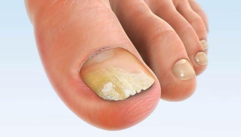Singurul tratament complet impotriva micozei unghiilor. Indeprteaza onicomicoza in sedinte!