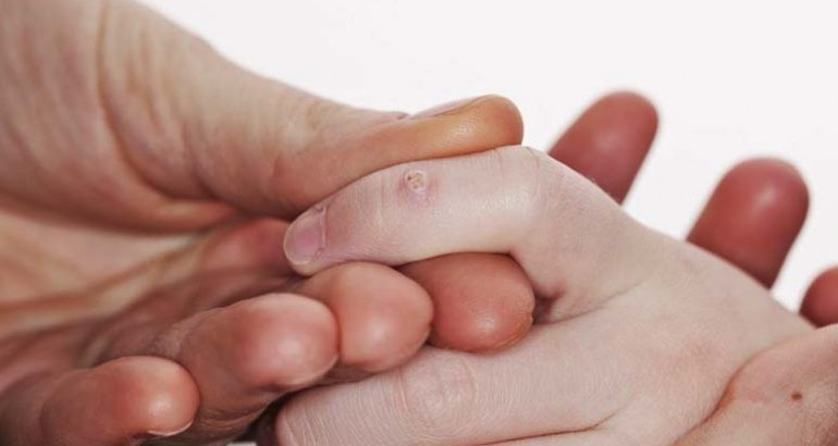 Tratament veruci vulgare ( negi ) la copii
