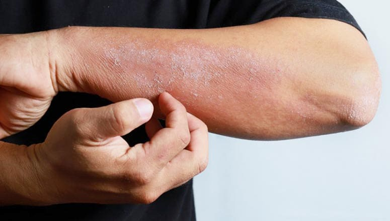 Tratament Eczeme