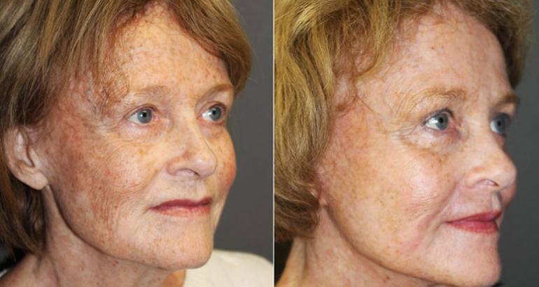 Ce este si la ce ajuta procedura de rejuvenare facială?