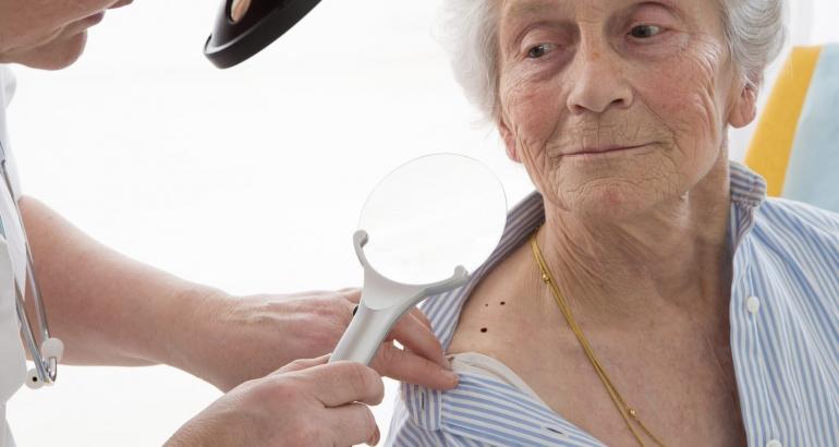 Dermatoscopia – diagnosticarea precoce a cancerului de piele